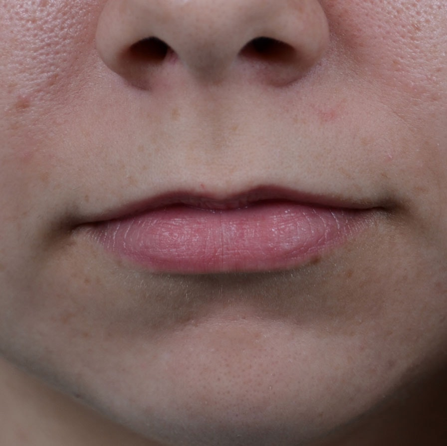 Lip Lift Gallery - Patient 8341617 - Image 1