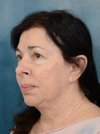 Facelift Gallery - Patient 6158554 - Image 1