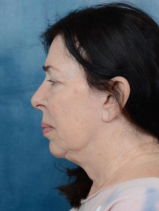 Facelift Gallery - Patient 6158554 - Image 5