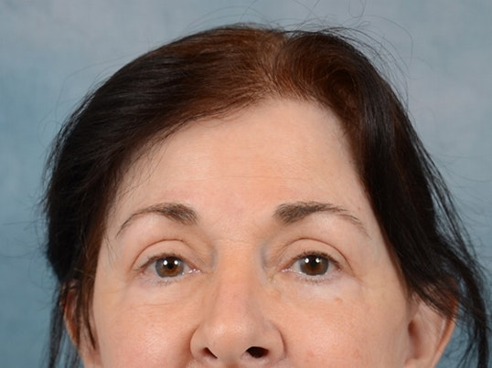 Eyelid Lift Gallery - Patient 6158495 - Image 2