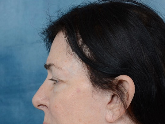 Eyelid Lift Gallery - Patient 6158495 - Image 5