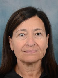 Laser Skin Resurfacing Gallery - Patient 5923302 - Image 1