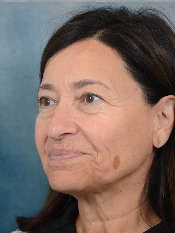 Laser Skin Resurfacing Gallery - Patient 5923302 - Image 3