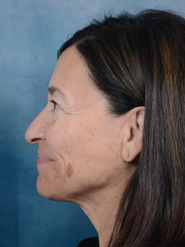 Laser Skin Resurfacing Gallery - Patient 5923302 - Image 5