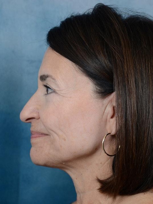 Laser Skin Resurfacing Gallery - Patient 5923302 - Image 6