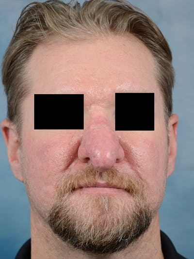 Rhinophyma Gallery - Patient 9980611 - Image 1