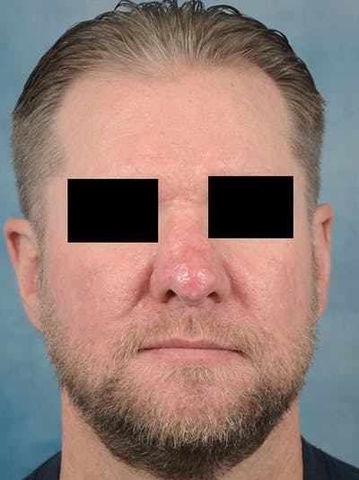 Rhinophyma Gallery - Patient 9980611 - Image 2