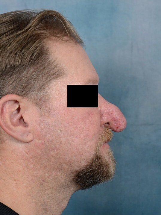 Rhinophyma Gallery - Patient 9980611 - Image 3