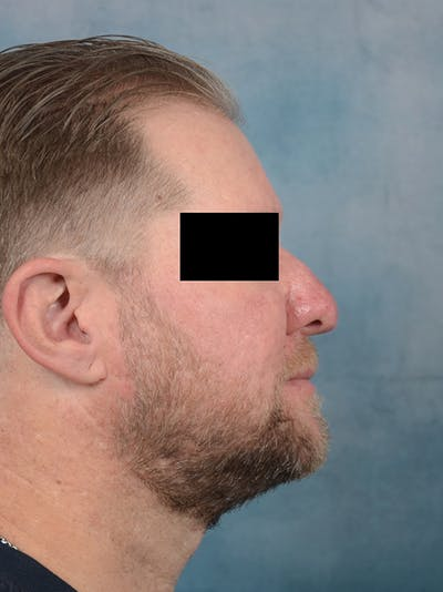 Rhinophyma Gallery - Patient 9980611 - Image 4