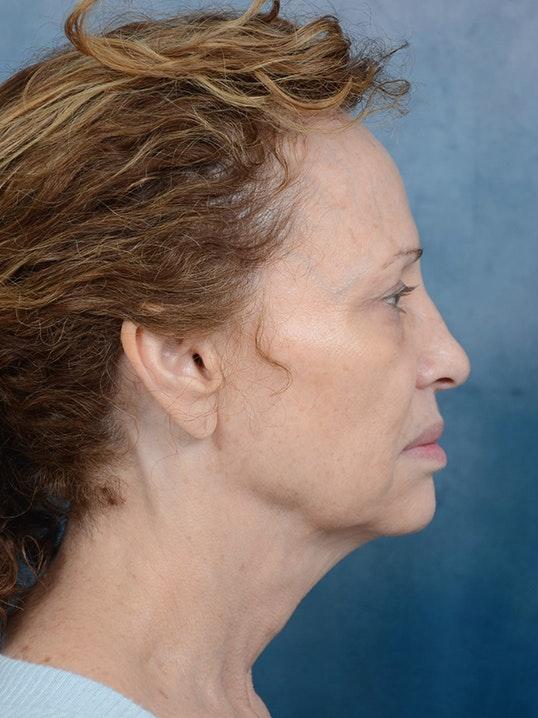 Facetite Gallery - Patient 9983023 - Image 5