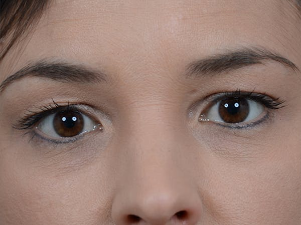 Eyelid Lift Gallery - Patient 10945496 - Image 1