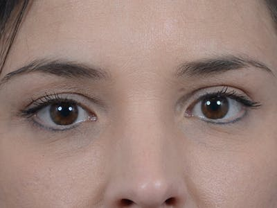 Eyelid Lift Gallery - Patient 10945496 - Image 2