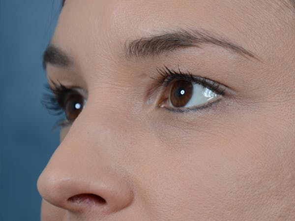 Eyelid Lift Gallery - Patient 10945496 - Image 3