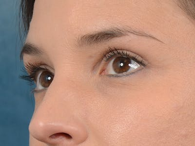 Eyelid Lift Gallery - Patient 10945496 - Image 4