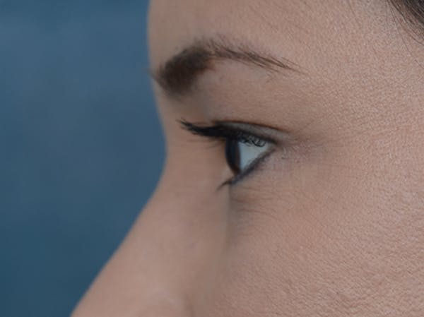 Eyelid Lift Gallery - Patient 10945496 - Image 5