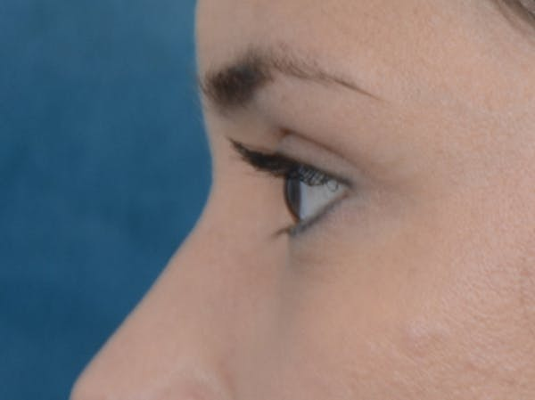 Eyelid Lift Gallery - Patient 10945496 - Image 6