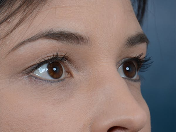 Eyelid Lift Gallery - Patient 10945496 - Image 7