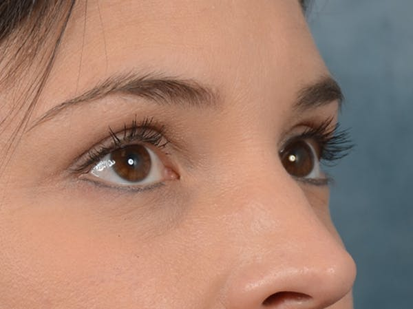 Eyelid Lift Gallery - Patient 10945496 - Image 8