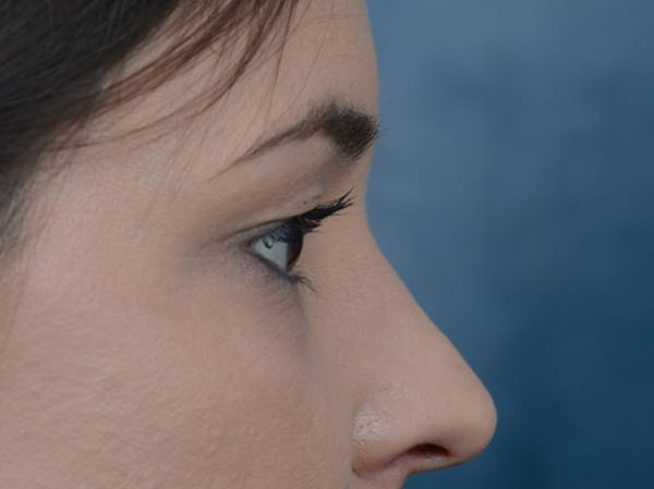 Eyelid Lift Gallery - Patient 10945496 - Image 9