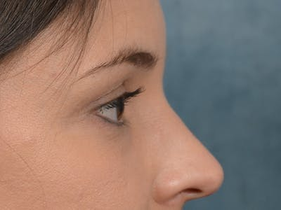 Eyelid Lift Gallery - Patient 10945496 - Image 10