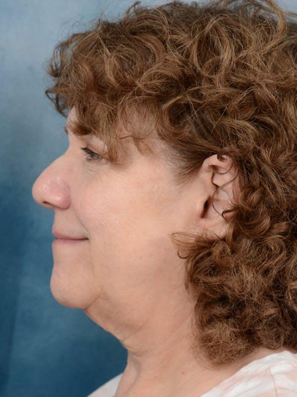 Facelift Gallery - Patient 10948747 - Image 5