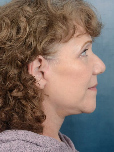 Facelift Gallery - Patient 10948747 - Image 10