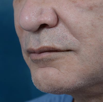 Lip Lift Gallery - Patient 12608394 - Image 1