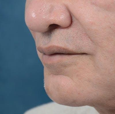 Lip Lift Gallery - Patient 12608394 - Image 2