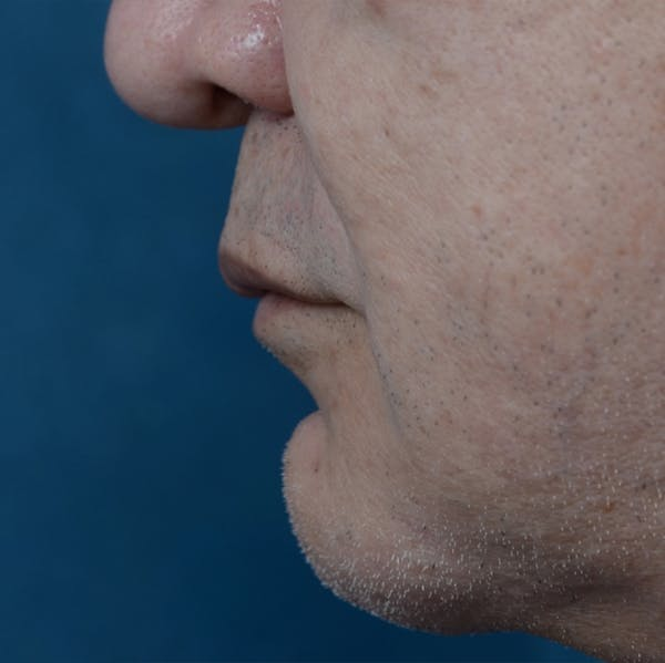 Lip Lift Gallery - Patient 12608394 - Image 3