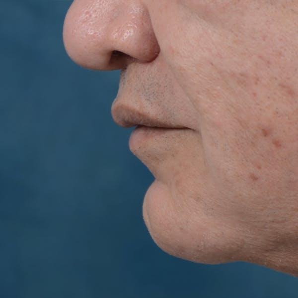 Lip Lift Gallery - Patient 12608394 - Image 4