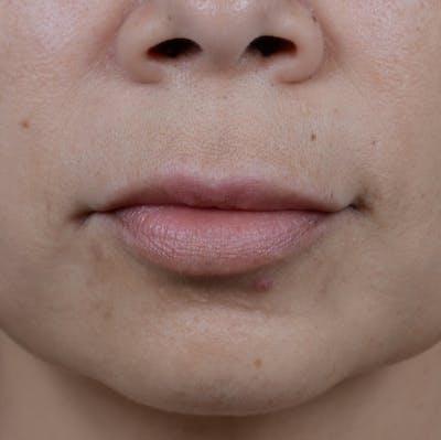 Lip Lift Gallery - Patient 12745272 - Image 1