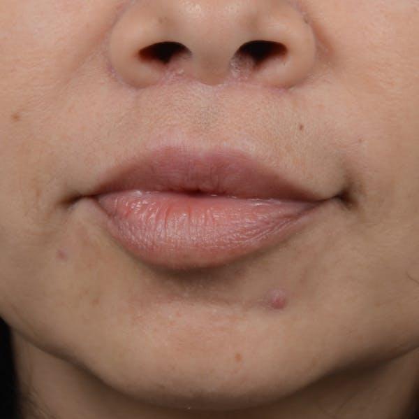 Lip Lift Gallery - Patient 12745272 - Image 2