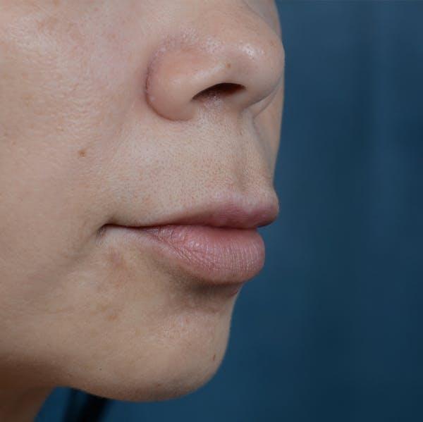 Lip Lift Gallery - Patient 12745272 - Image 3
