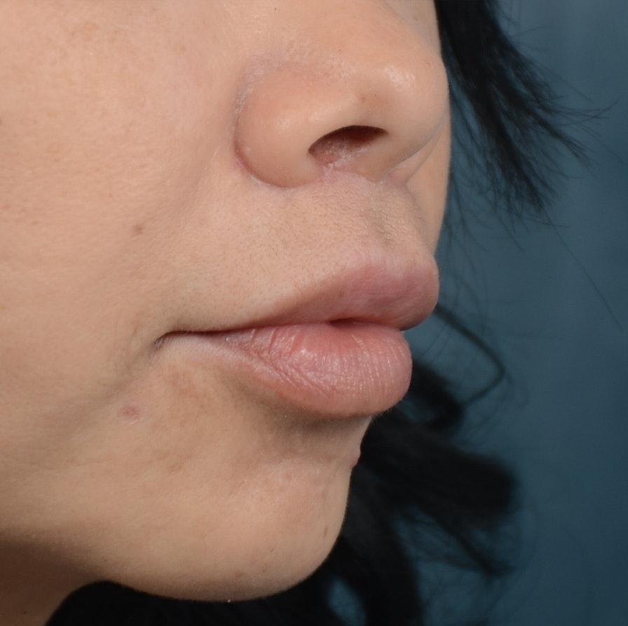 Lip Lift Gallery - Patient 12745272 - Image 4