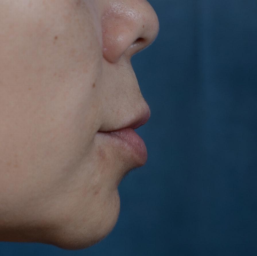 Lip Lift Gallery - Patient 12745272 - Image 5