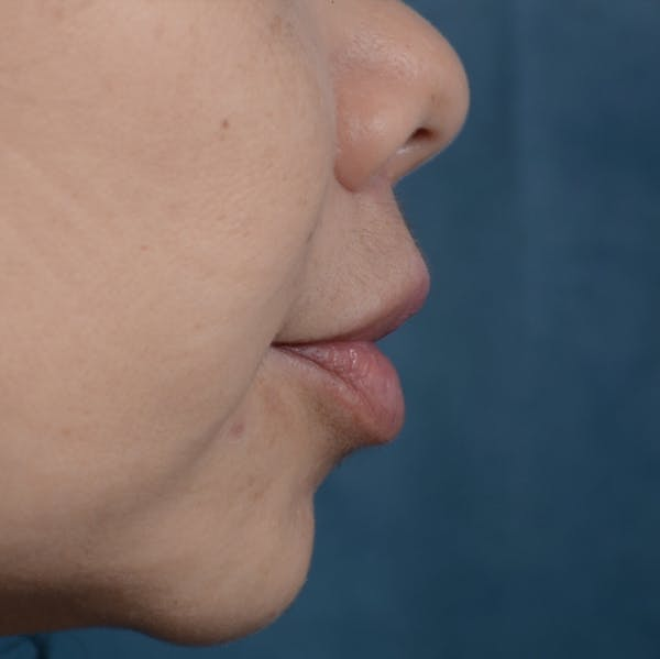 Lip Lift Gallery - Patient 12745272 - Image 6