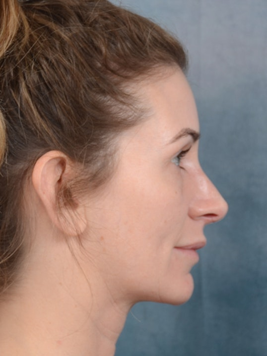 Rhinoplasty Gallery - Patient 6279838 - Image 10
