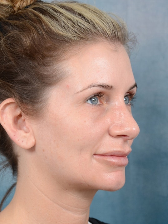 Rhinoplasty Gallery - Patient 6279838 - Image 8