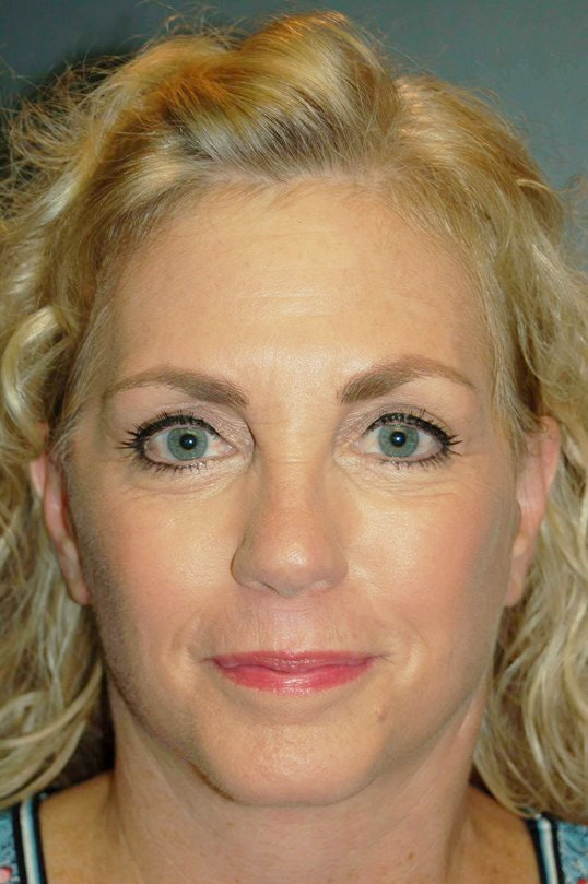 Facelift Gallery - Patient 4521009 - Image 2