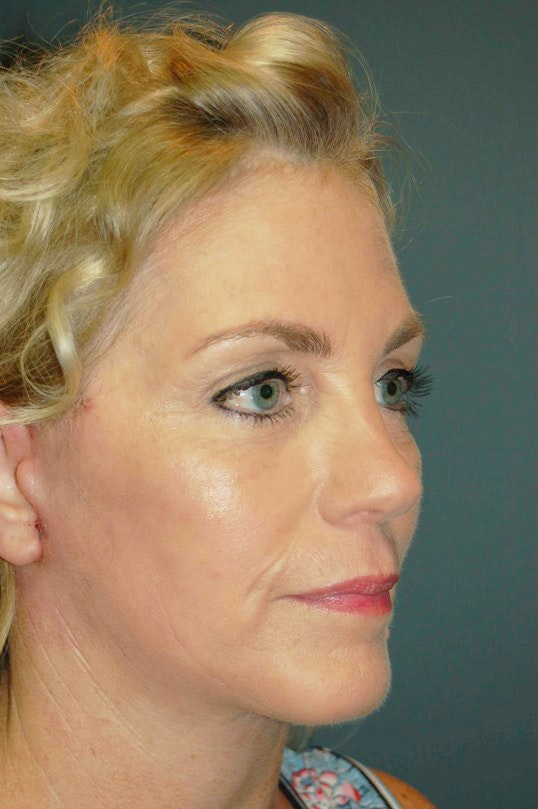 Facelift Gallery - Patient 4521009 - Image 4