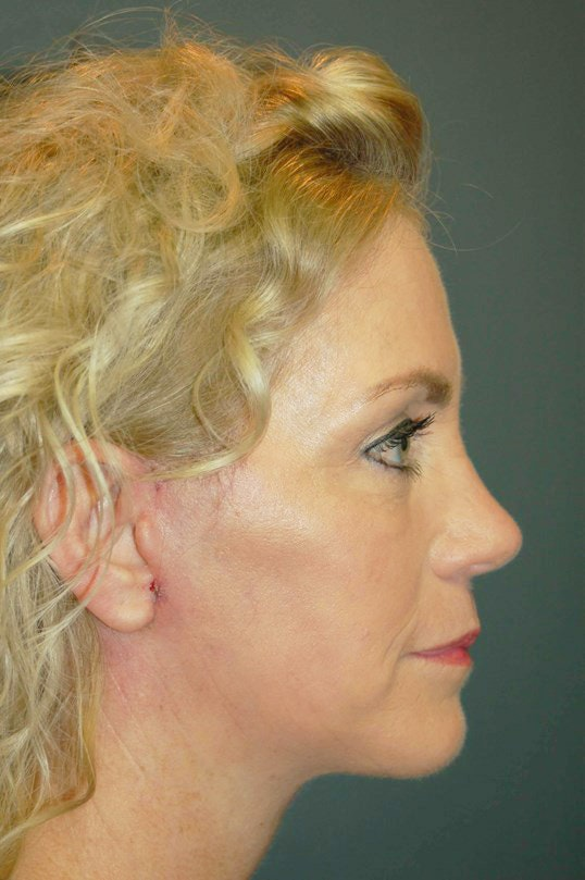 Facelift Gallery - Patient 4521009 - Image 6