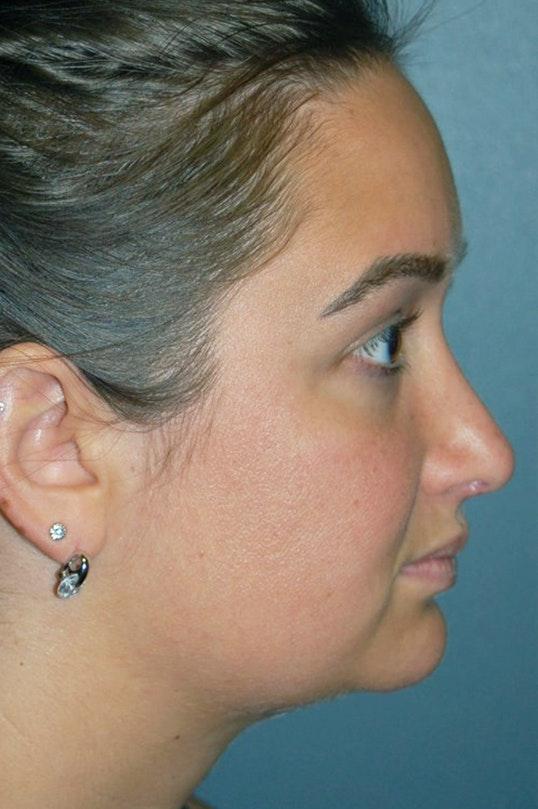 Rhinoplasty Gallery - Patient 4521037 - Image 2