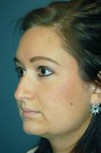 Rhinoplasty Gallery - Patient 4521037 - Image 1
