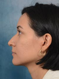 Rhinoplasty Gallery - Patient 13573466 - Image 1