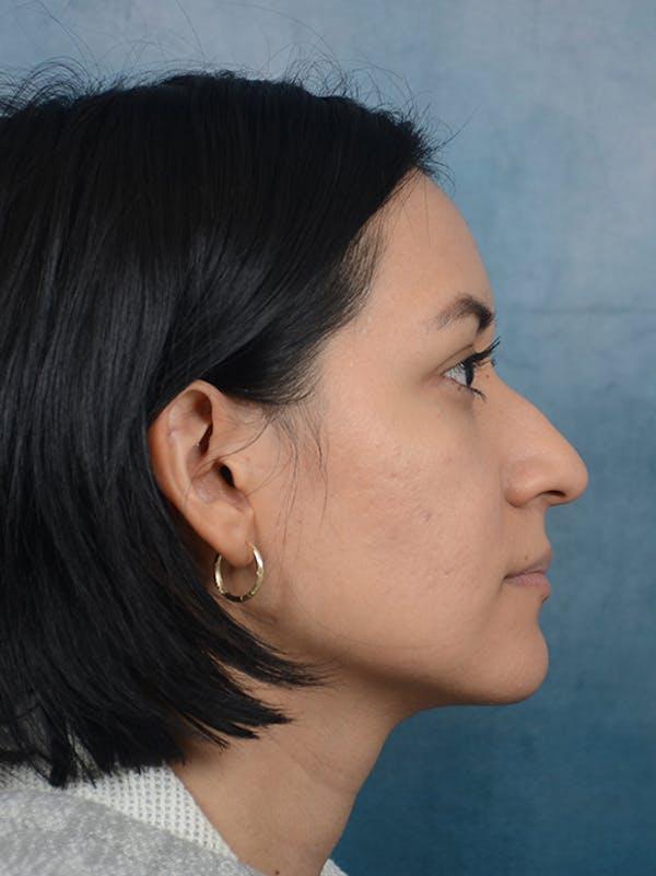 Rhinoplasty Gallery - Patient 13573466 - Image 9