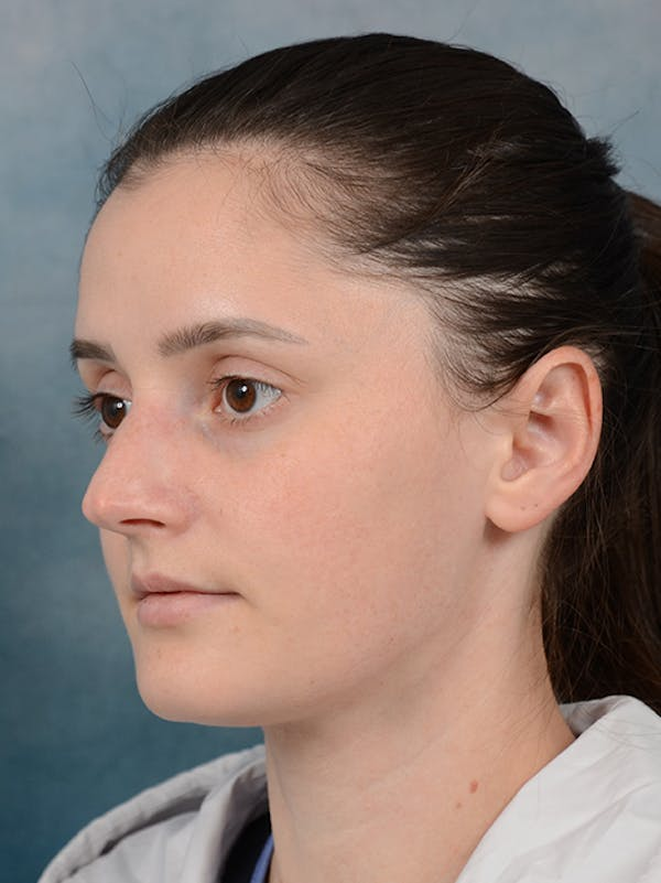 Rhinoplasty Gallery - Patient 13736918 - Image 5