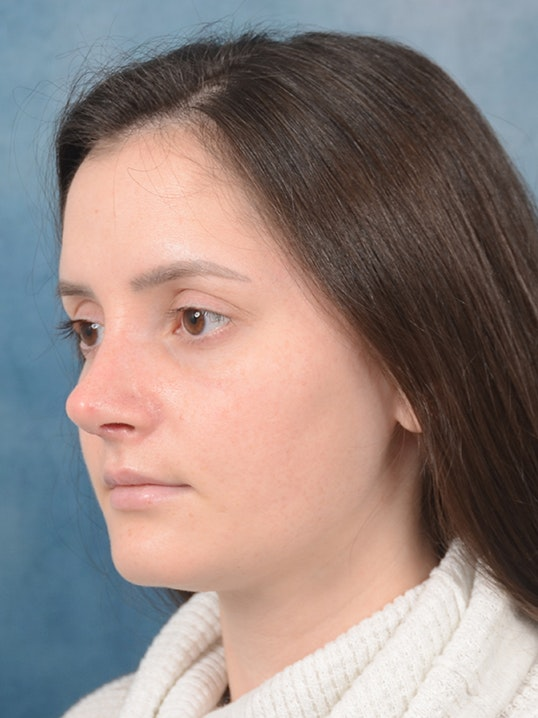 Rhinoplasty Gallery - Patient 13736918 - Image 4