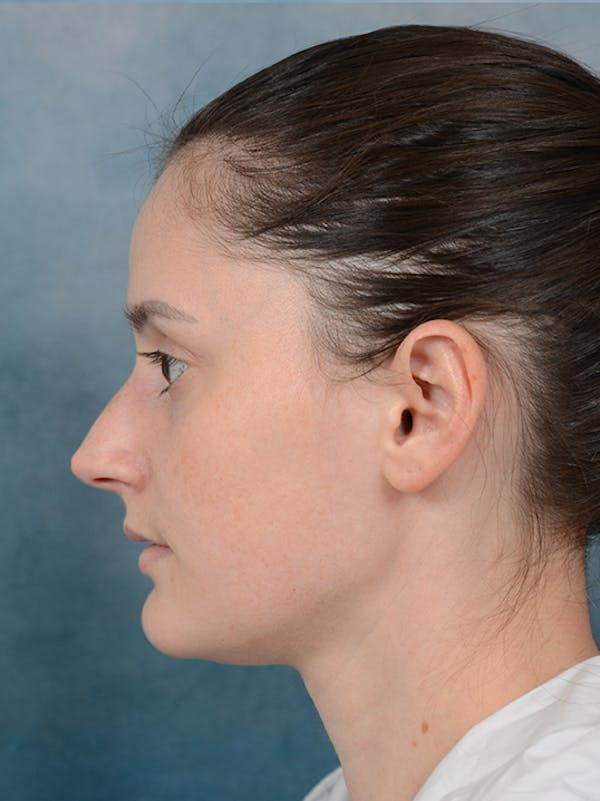 Rhinoplasty Gallery - Patient 13736918 - Image 1