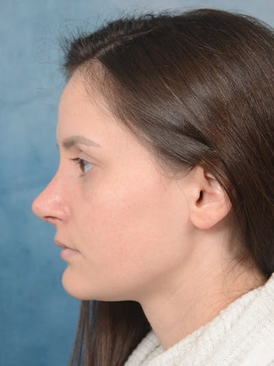 Rhinoplasty Gallery - Patient 13736918 - Image 2