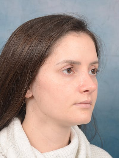 Rhinoplasty Gallery - Patient 13736918 - Image 8
